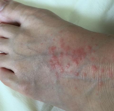 足のかゆみ